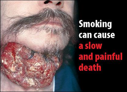 fumer-cause-une-mort-lente-et-douloureuse